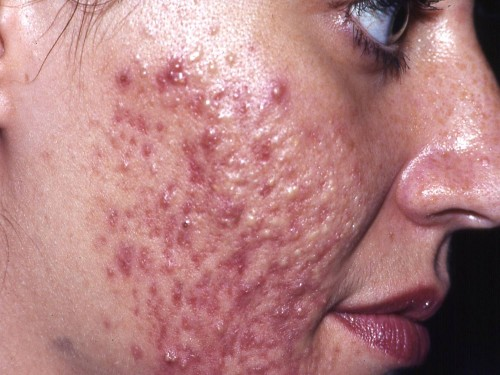 cystic acne and pimples under the skin