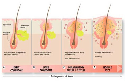 pathogenesis of acne - how to shape the pimple