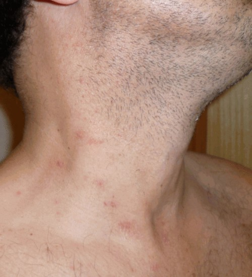 pimples on neck